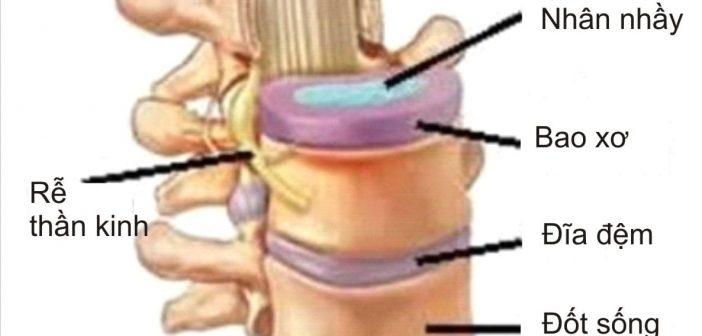 Thoát vị đĩa đệm cột sống cổ là gì, các dấu hiệu thường gặp 1