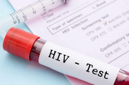 cách điều trị bệnh HIV 1