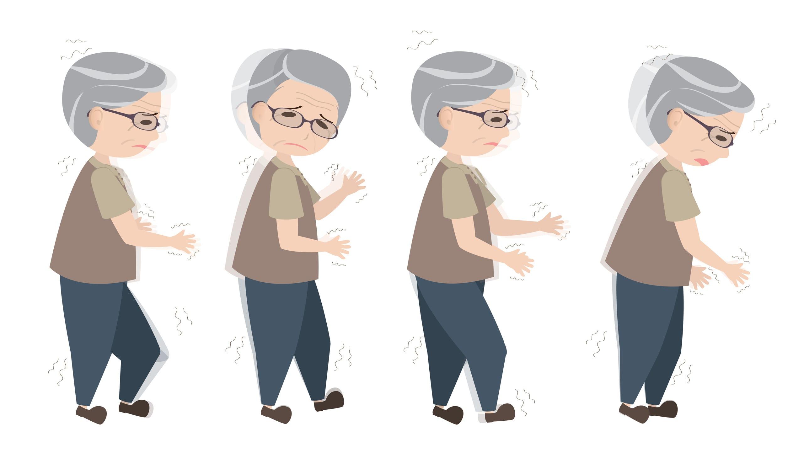 cách điều trị bệnh run tay chân 2